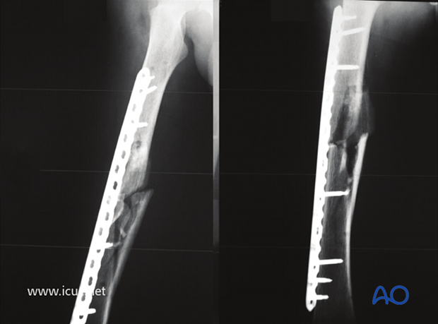 6 weeks postoperative AP and lateral images