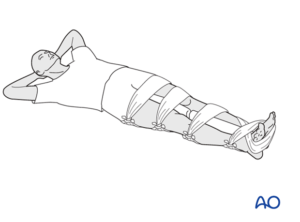 Splinting of injured leg to the uninjured leg
