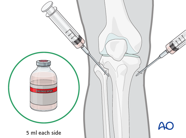 proximal femur fracture management with minimal resources