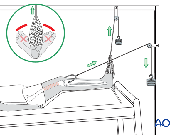 Application of adhesive sock to maintain rotation and dorsiflexion in the ankle