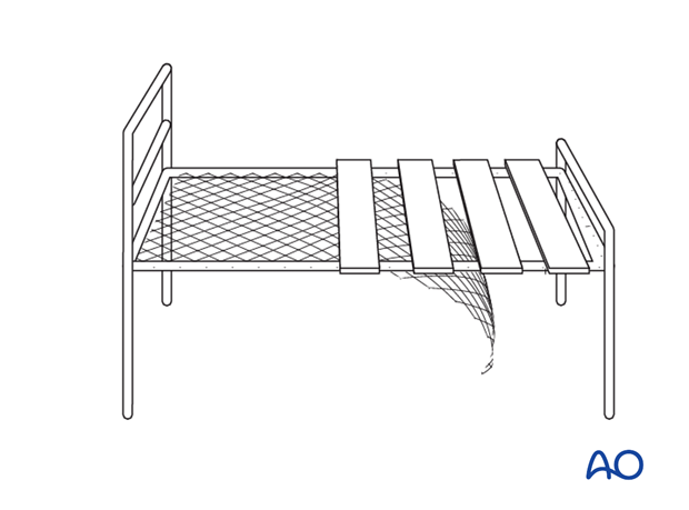 Modification of patient bed for mobilization of the knee