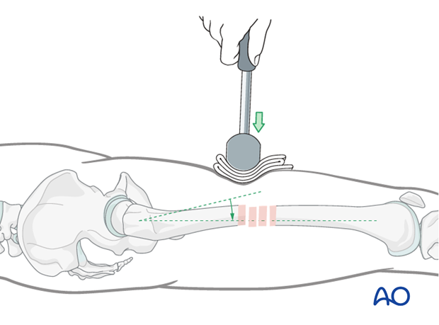 Femoral shaft – Reduction using mallet