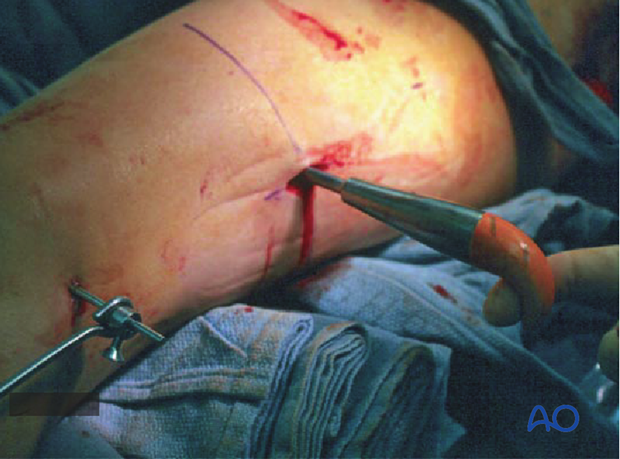 Femoral shaft – Reduction using bone hook
