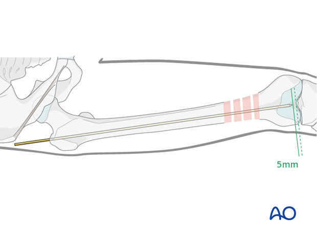 Femoral shaft – Antegrade nailing – Guide wire insertion