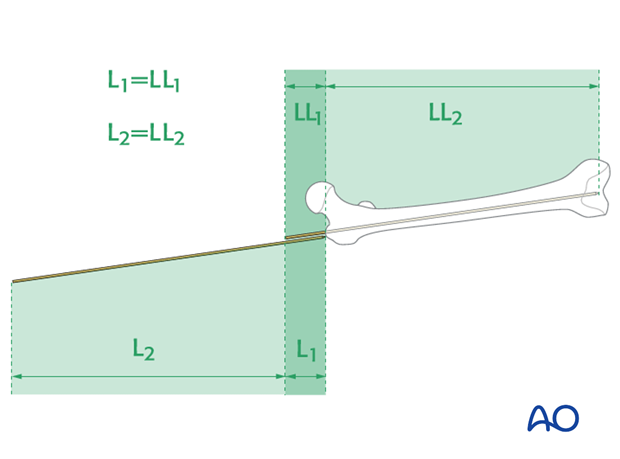 Femoral shaft – Antegrade nailing - Nail length and diameter using guide wire
