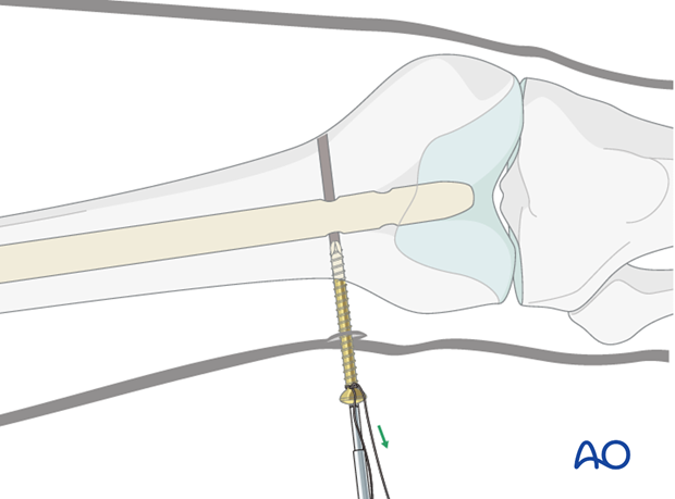 Femoral shaft – Antegrade nailing – Screw insertion pearl