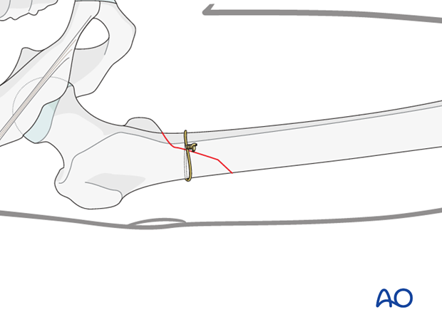 Antegrade nailing – Subtrochanteric femoral fracture – Reduction using cerckage wire