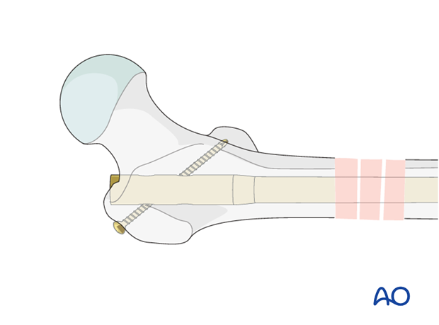 Antegrade nailing – Subtrochanteric femoral fracture – Nail locking - general considerations
