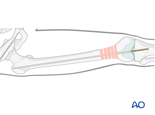 Femoral shaft – Retrograde nailing – Guide wire insertion