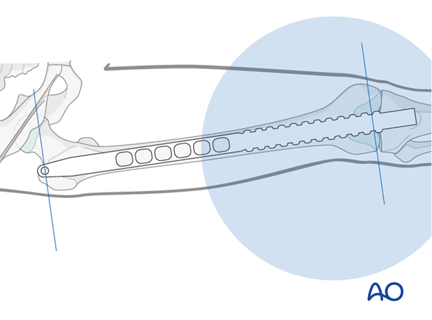 Femoral shaft – Retrograde nailing - Nail length and diameter using radiographic ruler