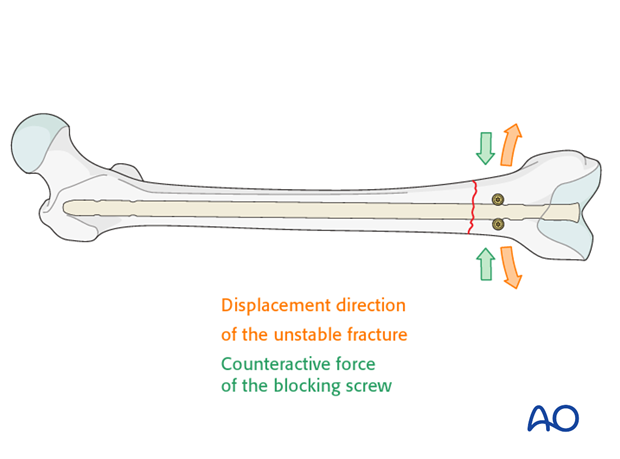 Poller screw (blocking screw) in distal transverse fractures