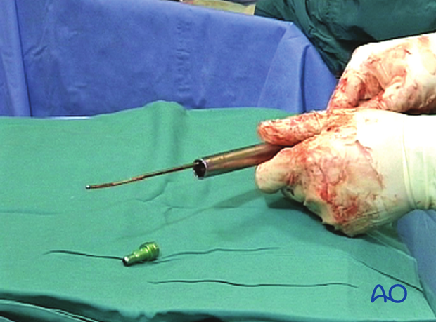 Femoral shaft – Retrograde nailing – Insertion of the end cap