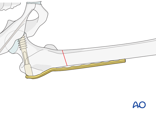 Plate fixation to proximal fragment