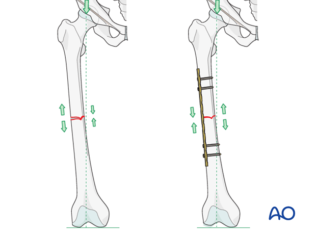 Transverse fracture of femoral shaft – Compression plate – Plate position