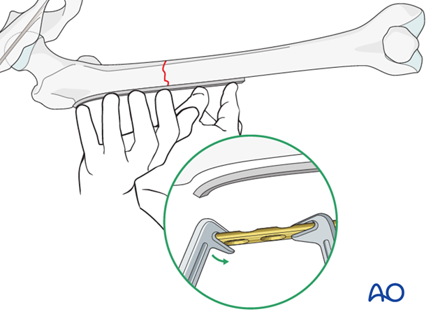 Transverse fracture of femoral shaft – Compression plate – Contouring the plate