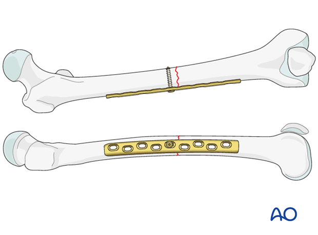 Transverse fracture of femoral shaft – Compression plate – Screw insertion