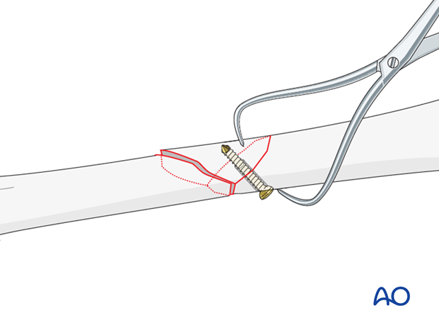 Femoral shaft – Lag screw and protection plate - Reduction and Fixation