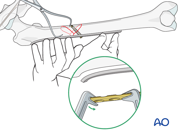 Femoral shaft – Lag screw and protection plate – Plate contouring