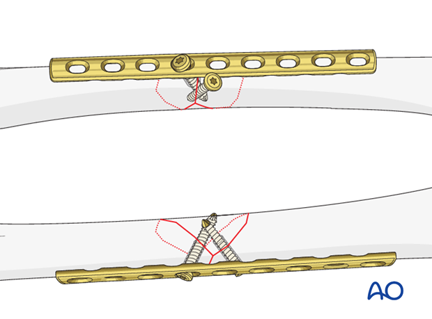 Femoral shaft – Lag screw and protection plate - Fixation of the protection plate