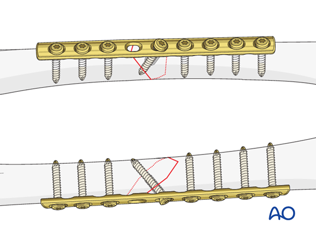 Femoral shaft – Lag screw and protection plate - Principles