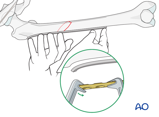 Femoral shaft – Lag screw and protection plate – Reduction and contouring of the plate