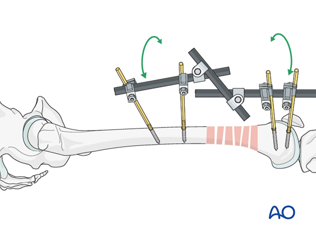 Distal femoral shaft – Minimally invasive bridge plating – Reduction