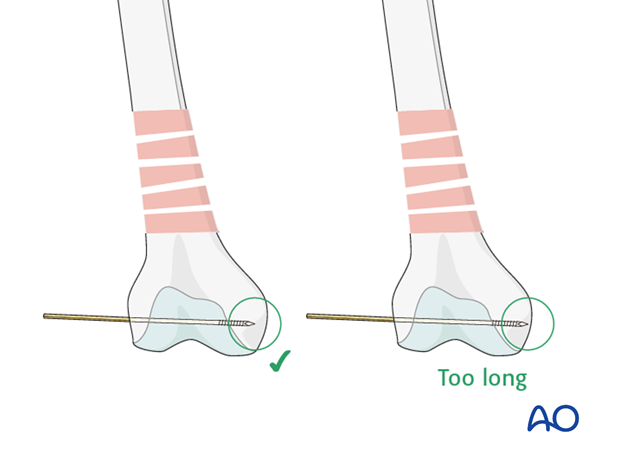 Distal femoral shaft – Minimally invasive bridge plating – Correct guide wire position