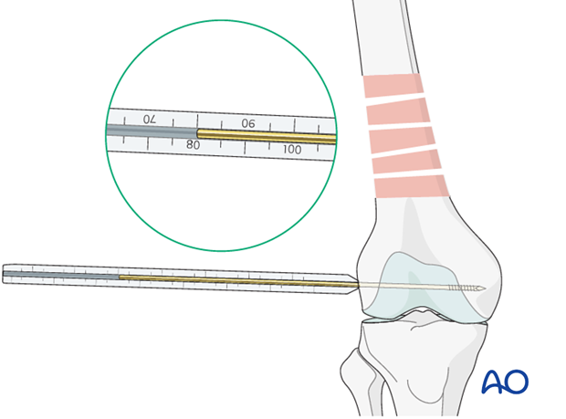 Femoral shaft – Bridge plating – Screw length