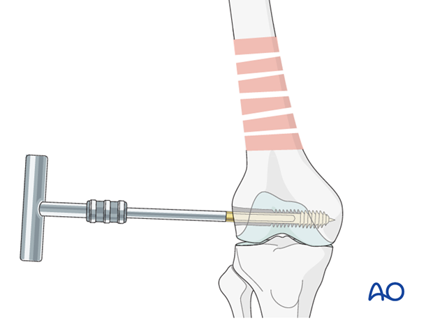 Femoral shaft – Bridge plating – Condylar screw insertion