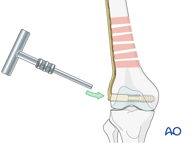 Femoral shaft – Bridge plating - Plate fixation to distal fragment
