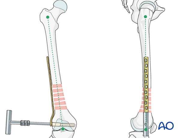Femoral shaft – Bridge plating - Plate fixation to proximal fragment – Verification of reduction