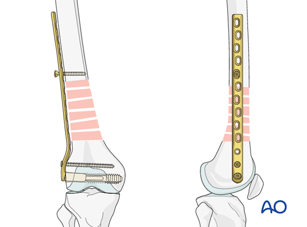Femoral shaft – Bridge plating - Plate fixation to proximal fragment