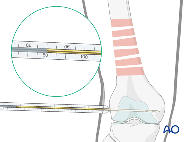 Distal femoral shaft – Minimally invasive bridge plating – Screw lenght