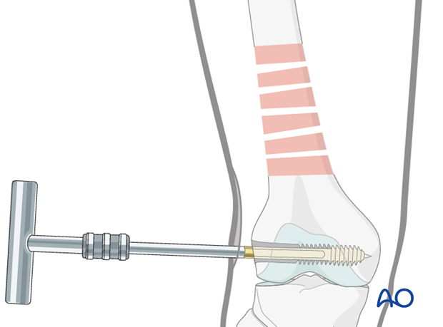Distal femoral shaft – Minimally invasive bridge plating – Screw insertion