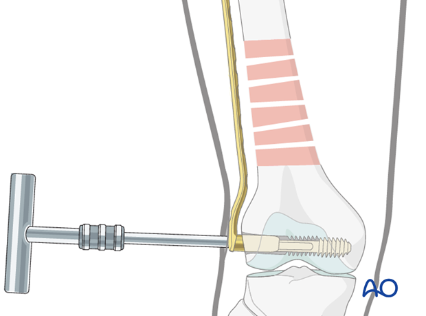 Distal femoral shaft – Minimally invasive bridge plating – Plate fixation to the distal fragment
