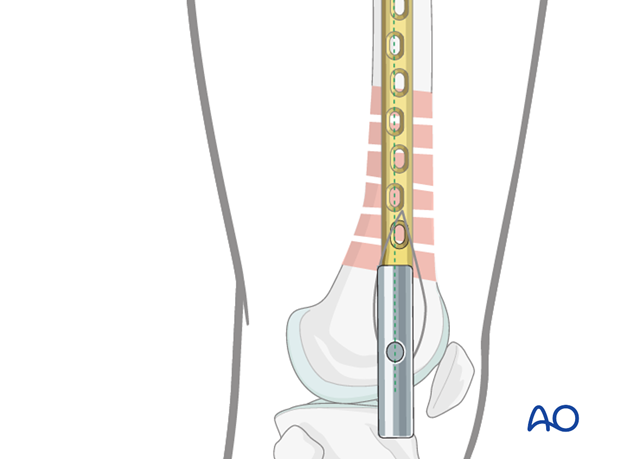 Distal femoral shaft – Minimally invasive bridge plating – Final screw placement