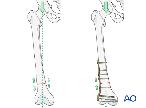 Transverse fracture of femoral shaft – Compression plate – Principles