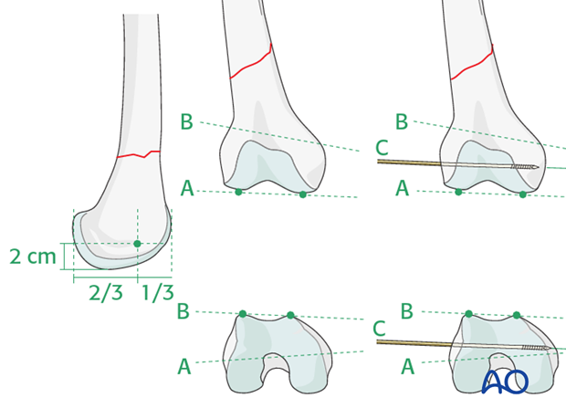 Plate fixation to the distal fragment