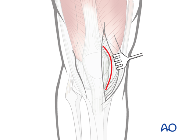 Opening of the knee joint