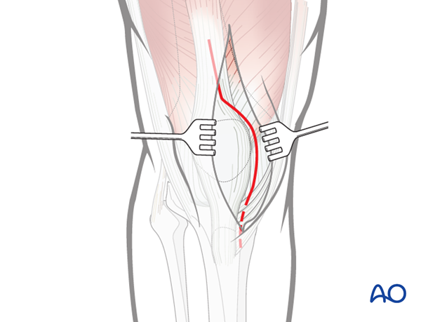 Proximal and distal extensions