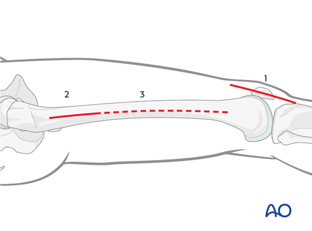 Extensions of the lateral parapatellar approach