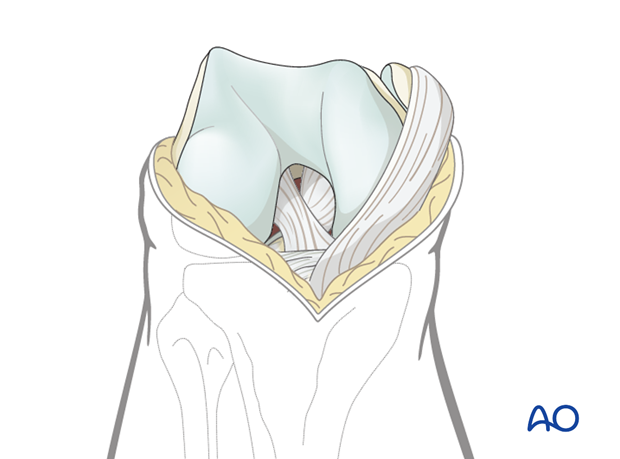 Distal extension of the deep dissection