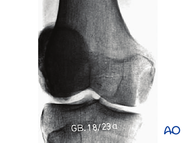 33B2.2 Simple, through the condylar load-bearing surface – X-ray