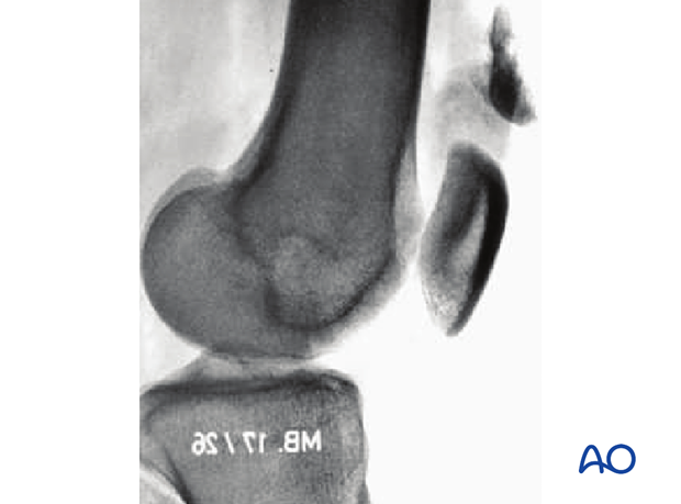 33B3.1 Anterior and lateral flake fracture – X-ray