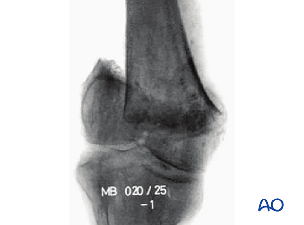 33C1.3 Through or below transcondylar axis -X-ray