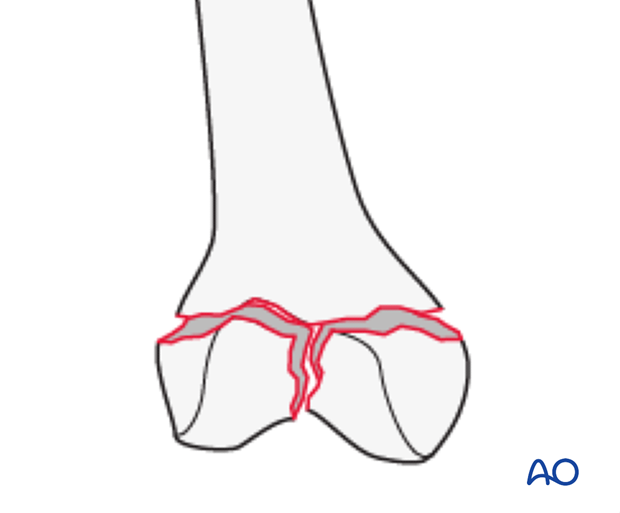 33C1.3 Through or below transcondylar axis