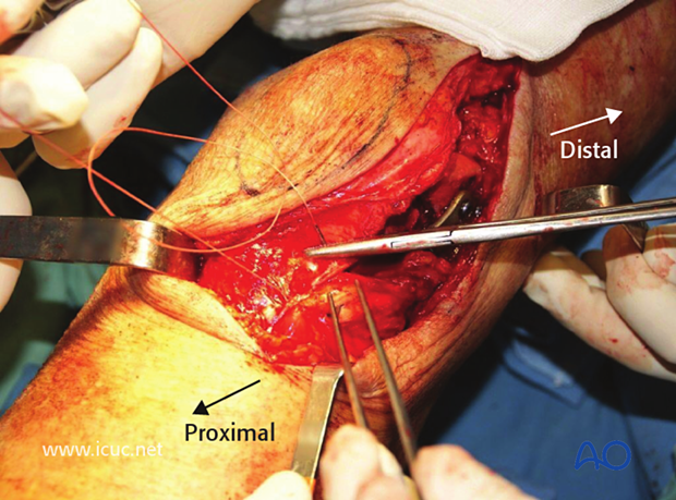 This image shows closure of the lateral parapatellar approach with a heavy suture approximating the tensor fascia lata and the lateral retinaculum.