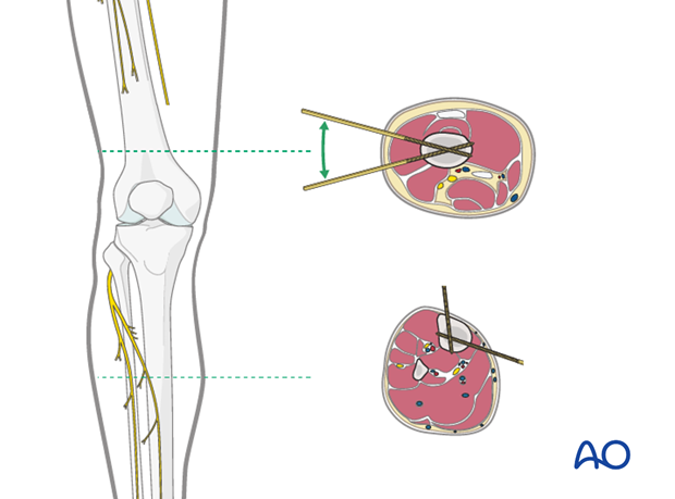 Fibular pin placement