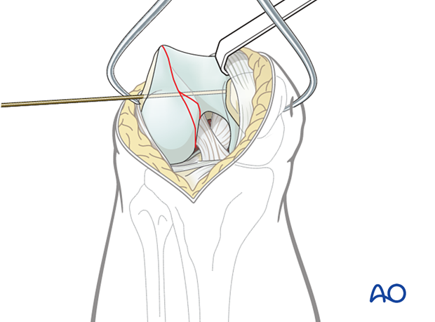 Insertion of K-wire
