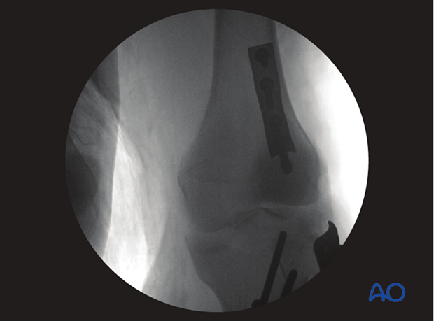 Postoperative image with posterior buttress plate in place.